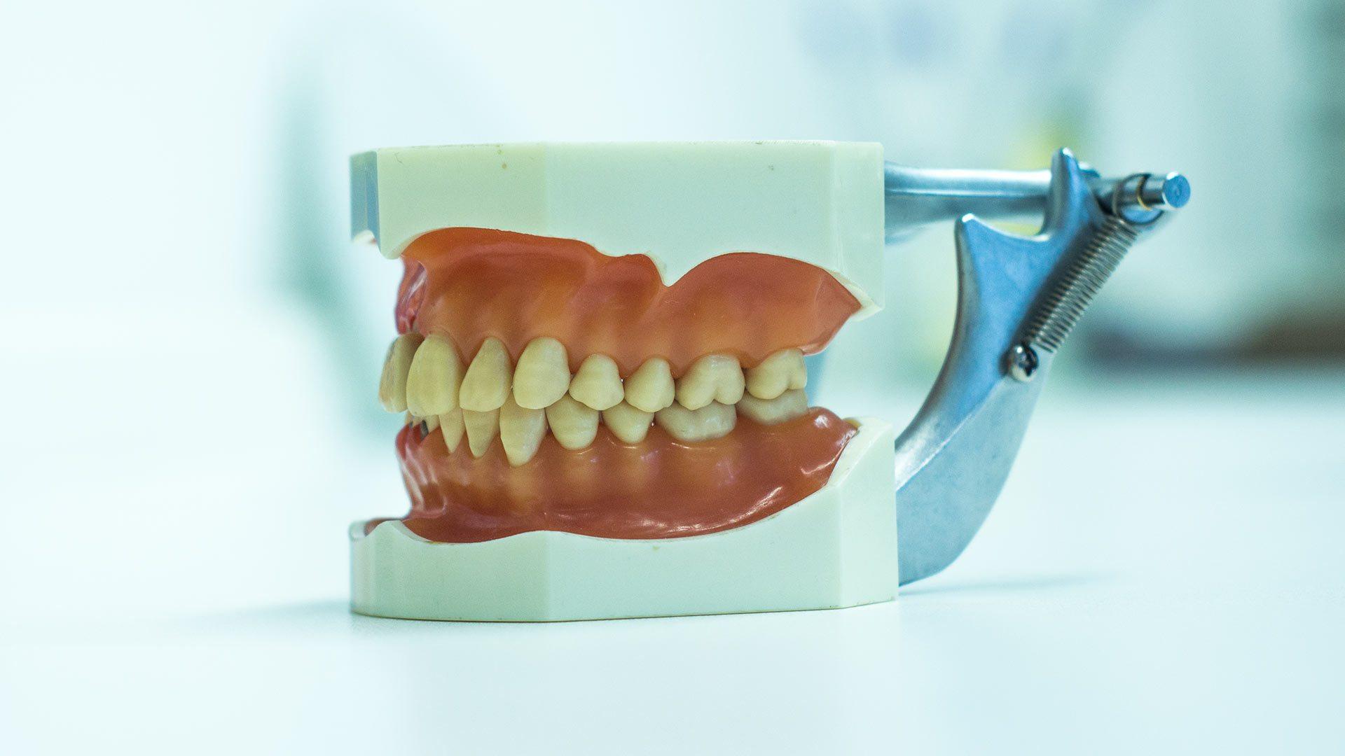 Parodontologische Zahnreinigung